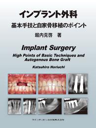 インプラント外科 基本手技と自家骨移植のポイント