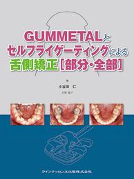 GUMMETALとセルフライゲーティングによる舌側矯正[部分・全部]