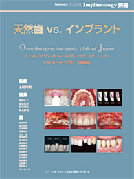 天然歯 vs.インプラント