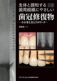 生体と調和する歯周組織にやさしい歯冠修復物その考え方とラボワーク