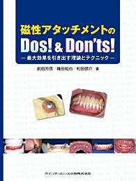 磁性アタッチメントのDos! & Don'ts!