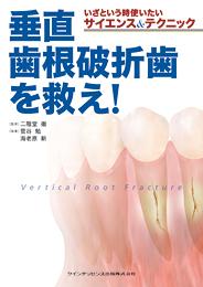 いざという時使いたいサイエンス&テクニック垂直歯根破折を救え!