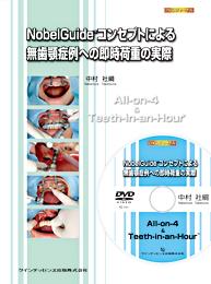 NobelGuideTMコンセプトによる無歯顎症例への即時荷重の実際