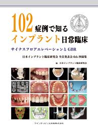 102症例で知るインプラント日常臨床