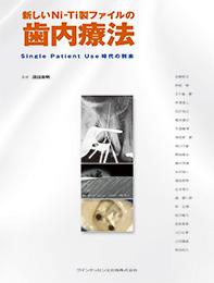 新しいNi-Ti製ファイルの歯内療法