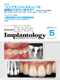 Quintessence DENTAL Implantology 2014年5号