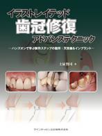 イラストレイテッド 歯冠修復 アドバンステクニック