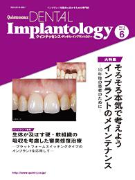 Quintessence DENTAL Implantology 2013年6号