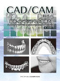CAD/CAM時代の最新インプラント上部構造
