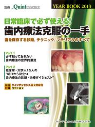 歯内療法克服の一手 別冊クインテッセンスYEAR BOOK 2013