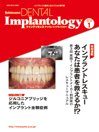 Quintessence DENTAL Implantology 2012年1号