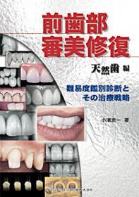 前歯部審美修復 天然歯編