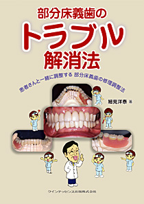 部分床義歯のトラブル解消法