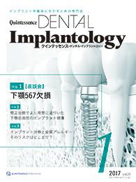 Quintessence DENTAL Implantology 2017年1月