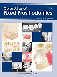 Color Atlas of Fixed Prosthodontics Vol. 2