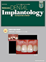 Quintessence DENTAL Implantology									 2010年5月