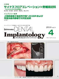 Quintessence DENTAL Implantology									 2014年7月