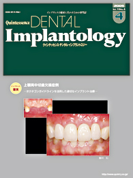 Quintessence DENTAL Implantology									 2009年7月