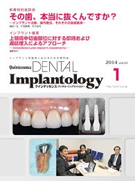 Quintessence DENTAL Implantology									 2014年1月