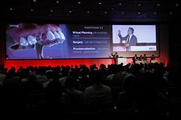 Nobel Biocare Symposium 2017-Tokyo開催