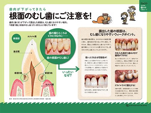 2018年3月号 「根面のむし歯 予防のポイントおまとめカード」