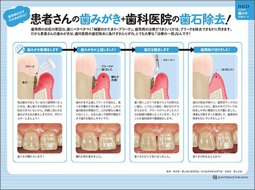 2019年3月号 「歯周病 治療&再発予防ガイダンスカード」