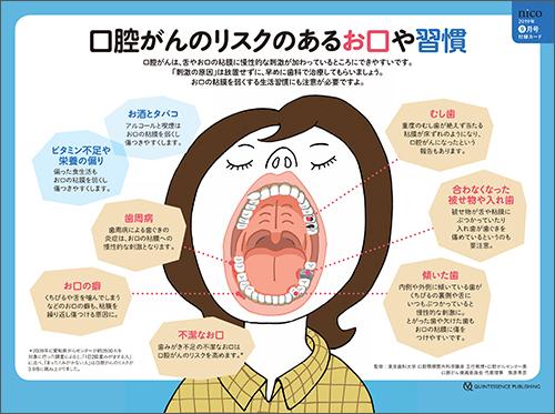 2019年9月号 「口腔がん 要注意ポイントチェックシート」