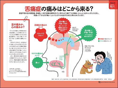 2020年3月号 「舌痛症 症状改善のためのアドバイスカード」
