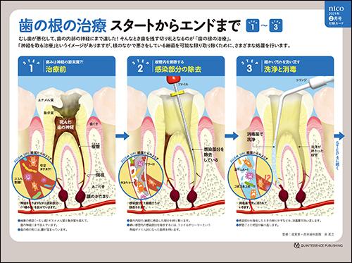 2021年2月号 「ビジュアル解説歯の根の治療」